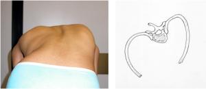 Fig. 4 a-b: Gibbo dorsale destro. Disegno schematico che mostra la rotazione dei corpi vertebrali alla base della deformazione della gabbia toracica
