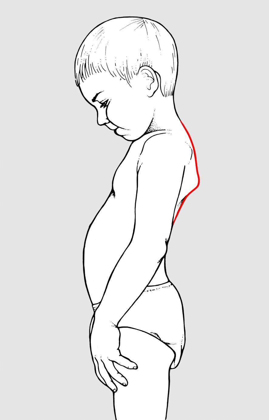 Mal di schiena di sintomi in polmoni