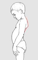 Fig. 1: habitus astenico, scapole alate, ipotonia dei muscoli addominali.