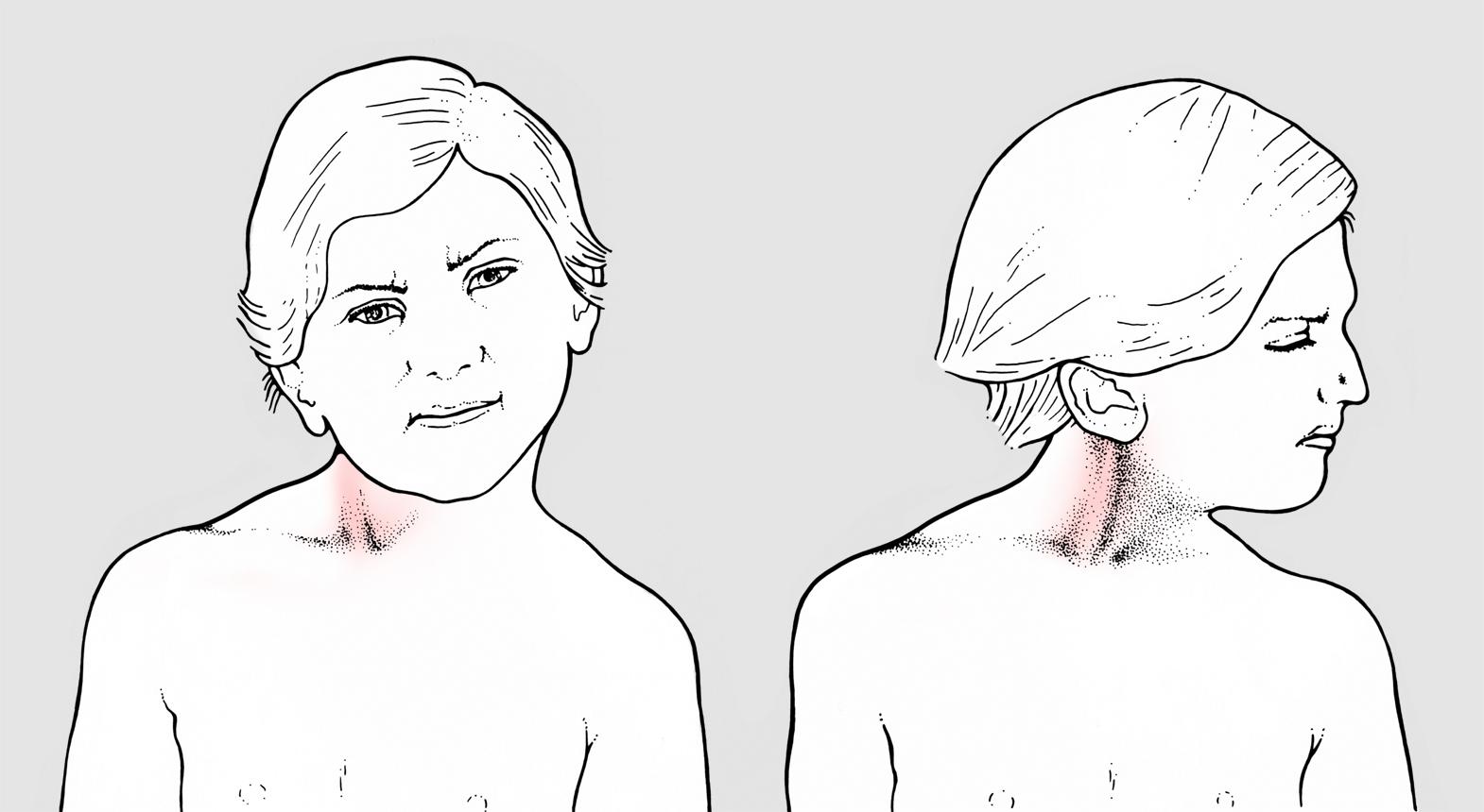Risultati immagini per torcicollo sintomi