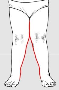 Fig 1: ginocchia a X